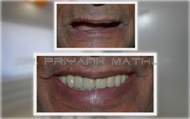 All on Four Full Mouth Dental Implants