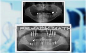 Full mouth Rehab with dental implants