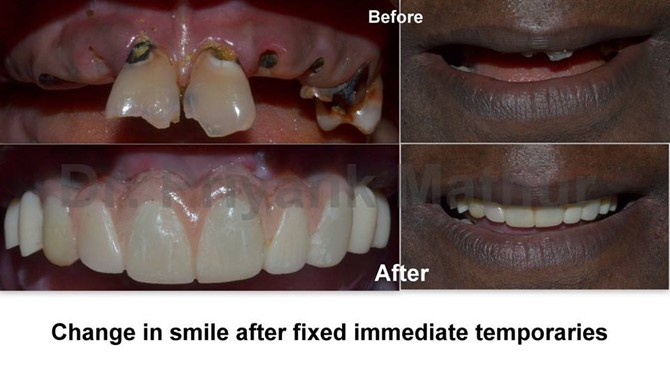 Full Mouth Rehabilitation Pune India