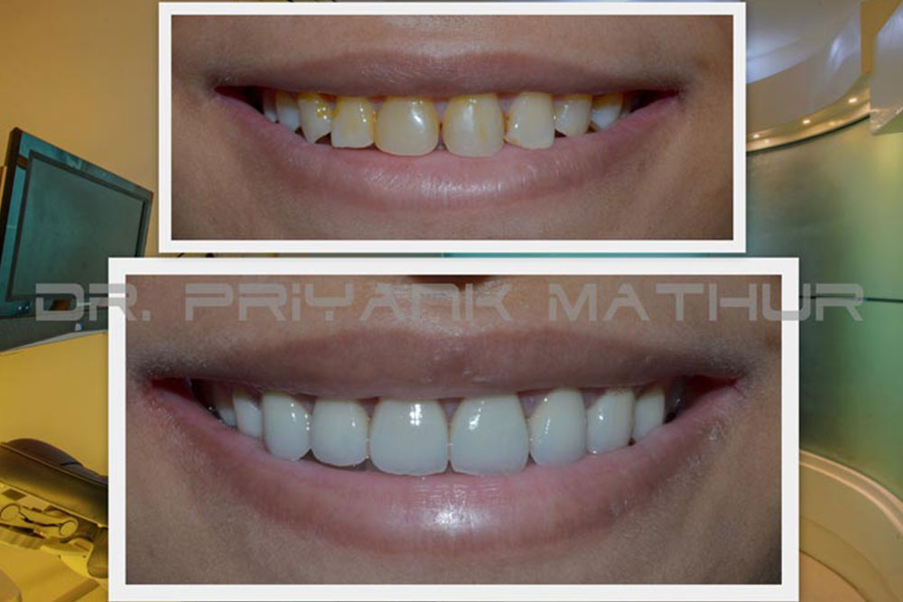 Smile Makeover In Pune With 3m Lava Crowns Permanent Teeth Whitening