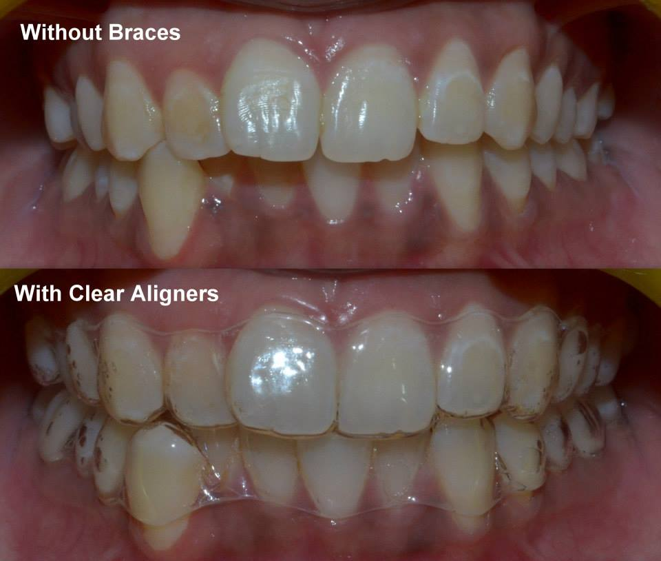 Best Orthodontists in Pune