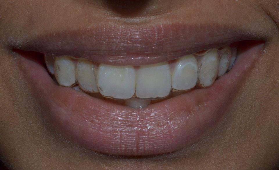 Orthodontist in Pune