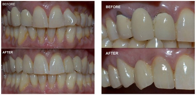 Dental Bridge Treatment in India