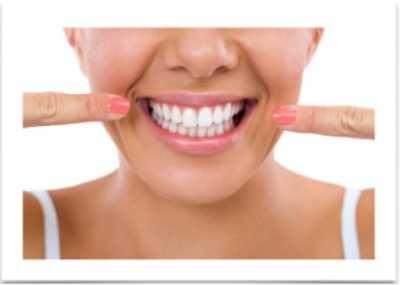 Dental Veneers in India