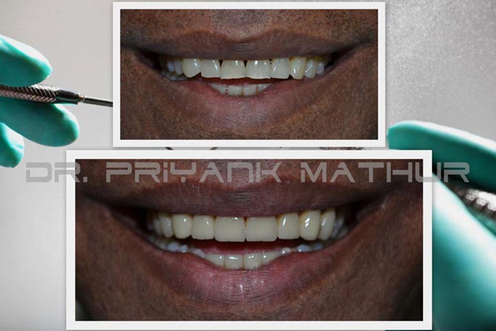 full mouth rehabilitation in Pune