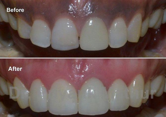 Gum Depigmentation Pune