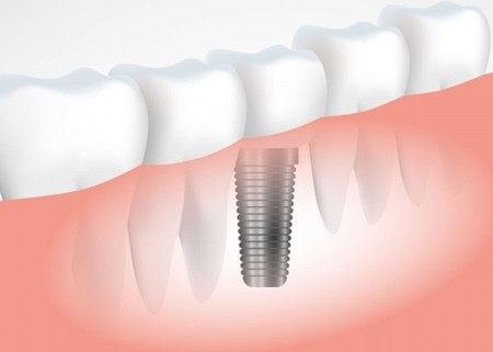 teeth implants cost in india