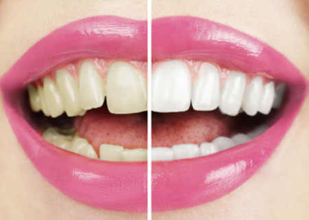 Cosmetic Dentist in Pune India