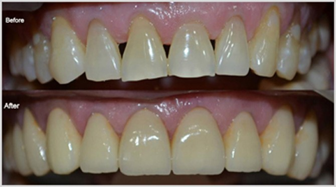 Cosmetic Dental Crown in Pune