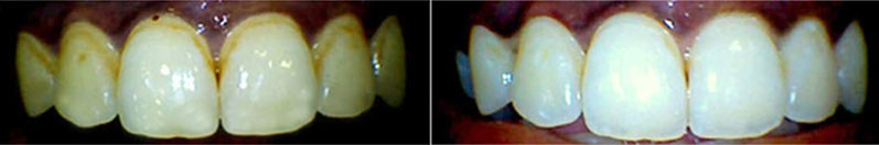 Teeth Whitening Pune