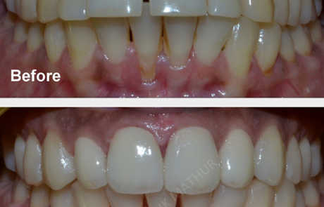 3M Lava Zirconia Crowns to treat a Reverse smile with Protruded teeth