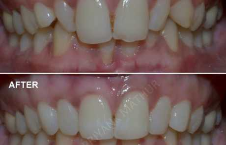 Affordable Smile Designing using Composite bonding & Teeth recontouring