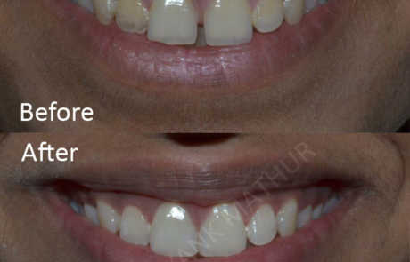 Composite Bonding & Teeth Recontouring