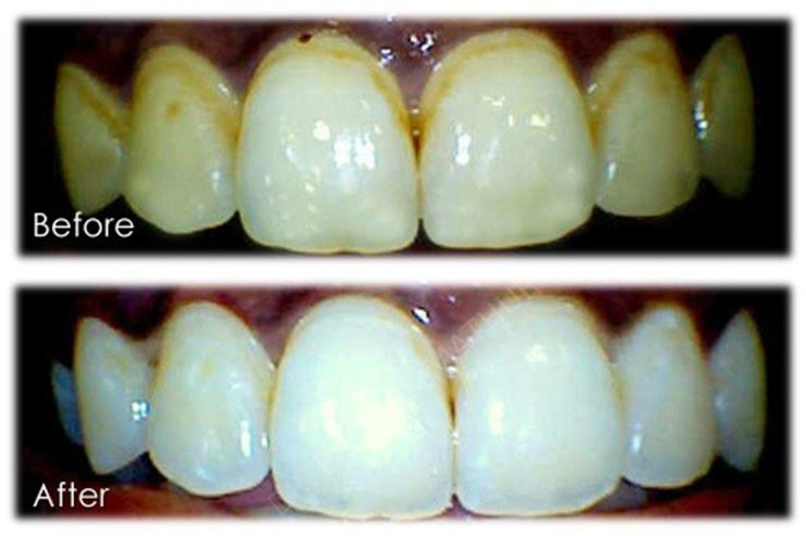 In office bleaching cases at Smilekraft Dentistry