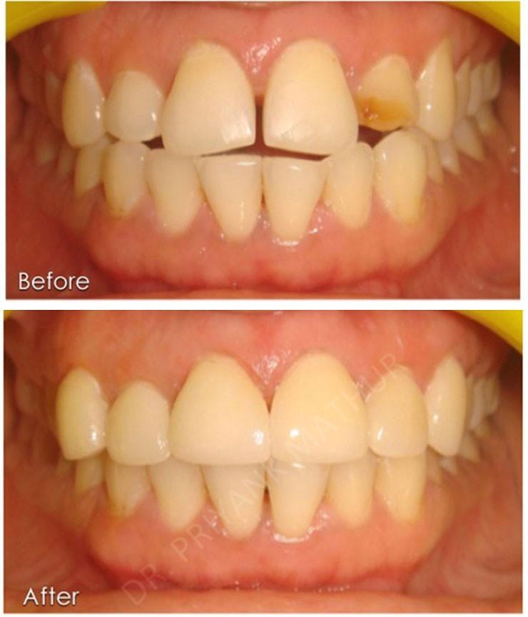 Cosmetic Dentistry 11 Smilekraft Dentistry