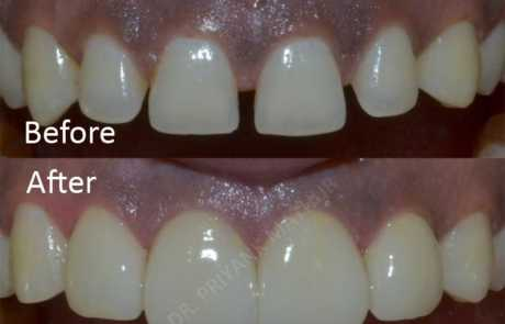 Diastema closure using Porcelain Veneers