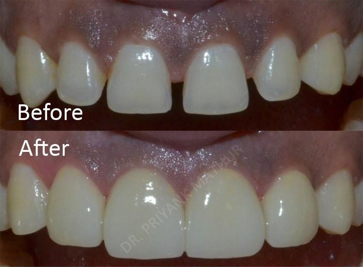 Diastema Closure Using Porcelain Veneers 3 Smilekraft