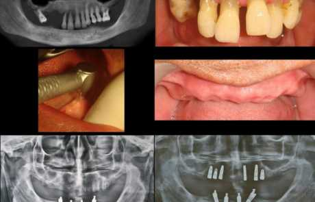 Full-Mouth Dental Implant Restorations