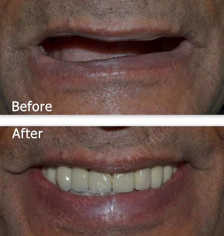 Full Mouth Dental Implant Restorations 2 Smilekraft