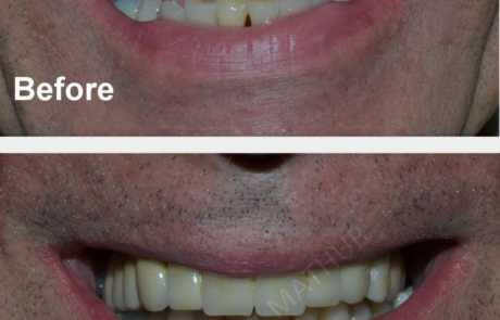 Full Upper jaw implants