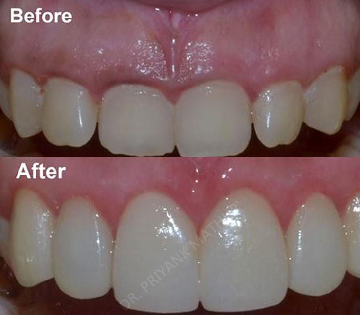 Gummy Smile Correction 1 Smilekraft Dentistry