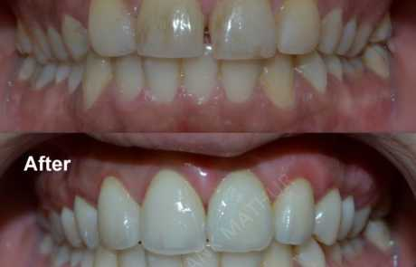 Gummy smile correction and enhancement