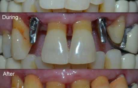 Multiple Dental implant restorations
