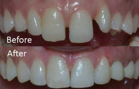 Orthodontic Teeth Alignment & Composite Bonding