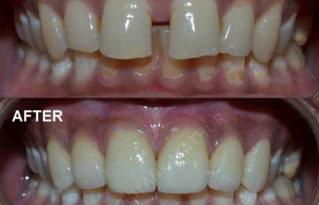 Porcelain Veneers to fill the gaps between teeth