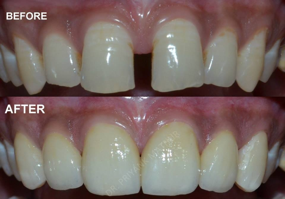 Porcelain Veneers To Fill The Gaps Between Teeth 3