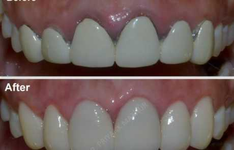 Replacing unaesthetic old crowns