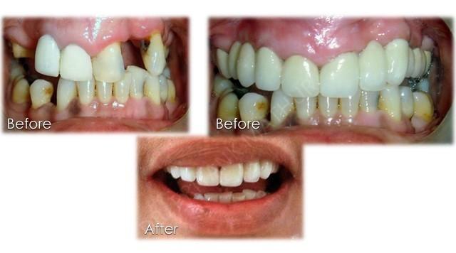 Restorative Amp Implant Dentistry 6 Smilekraft Dentistry