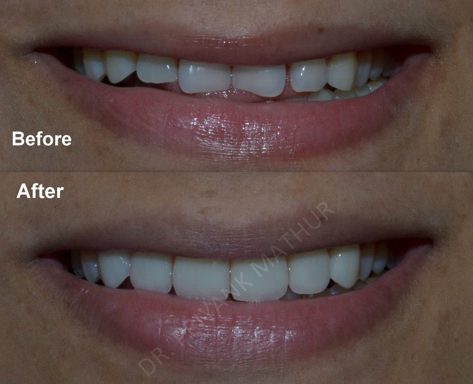 Smile designed with Porcelain Veneers