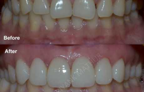 Simple Porcelain Veneers to improve-your smile