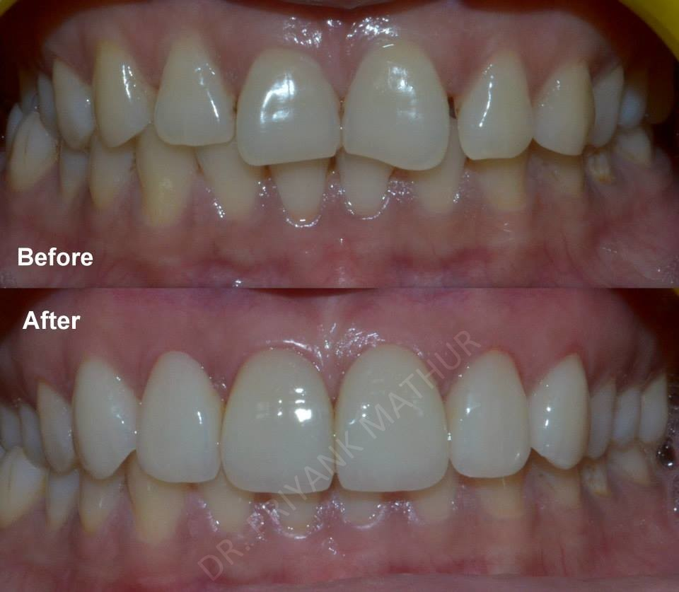 Simple Porcelain Veneers to improve your smile