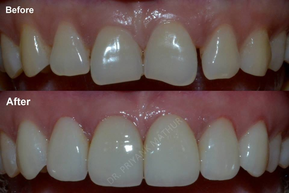 Upper teeth Porcelain Veneers to improve your smile
