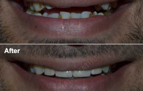 Smile & Bite Correction using 3M LAVA Crowns