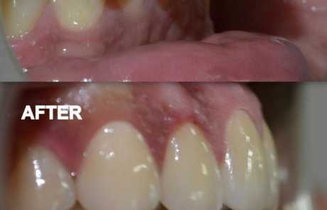 Smile Designing of Protruded Teeth