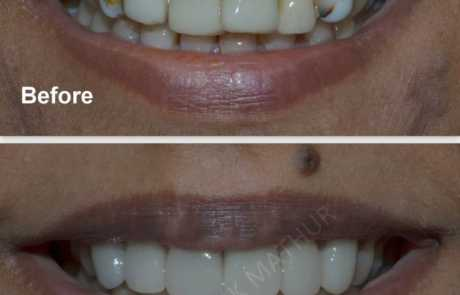 Smile Designing to improve the health of Teeth & Gums