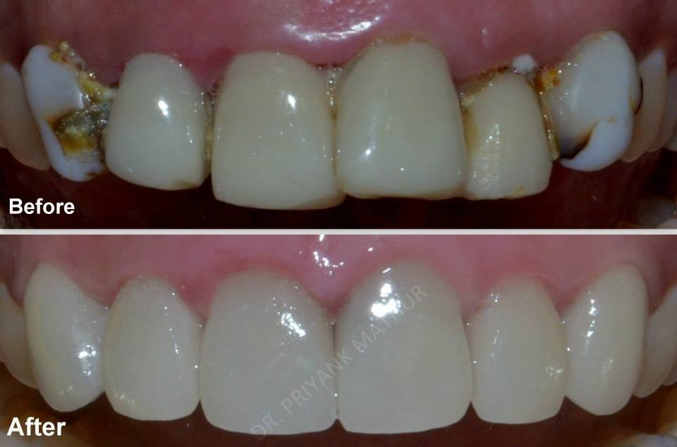 Smile Designing To Improve The Health Of Teeth Amp Gums 2