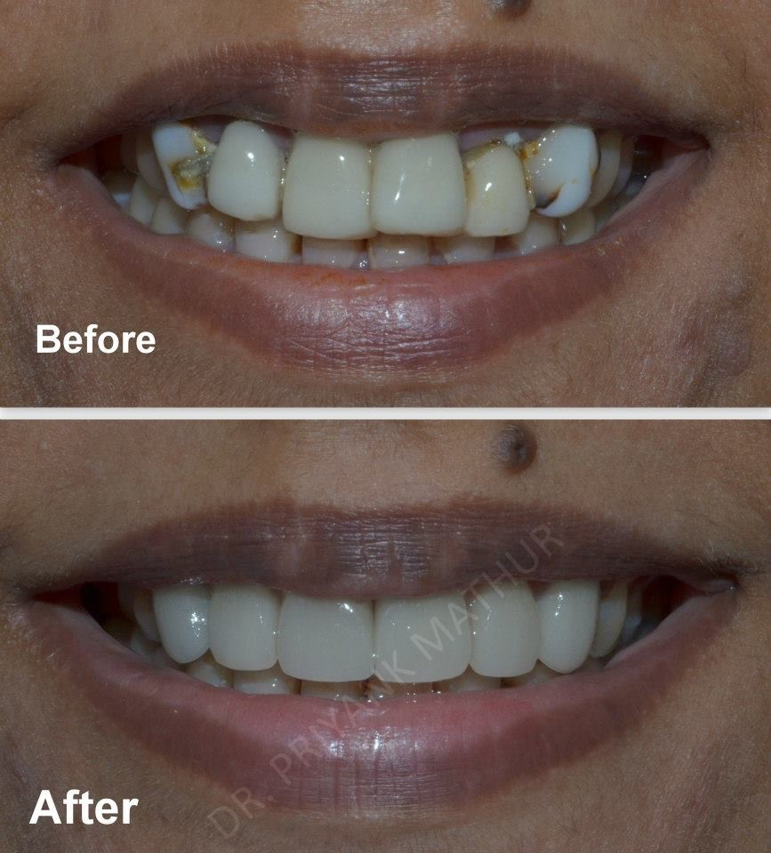 Smile Designing To Improve The Health Of Teeth Amp Gums 3