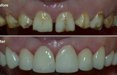 Smile Designing using LAVA Premium crowns