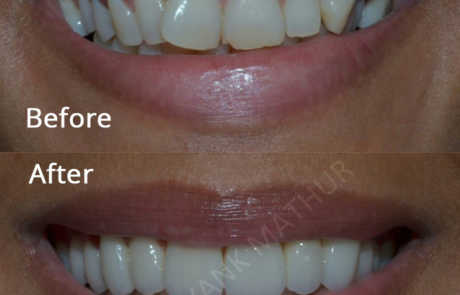 Smile Designing with Emax Crowns and Veneers