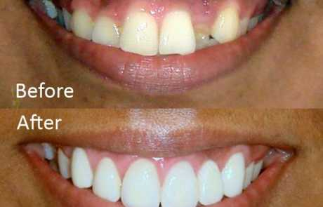Smile Designing with Zirconia Crowns & Bridge