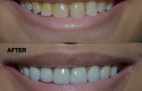 Smile Makeover using 3M LAVA Crowns