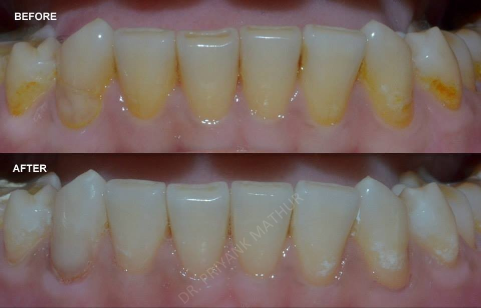 Lower teeth whitening