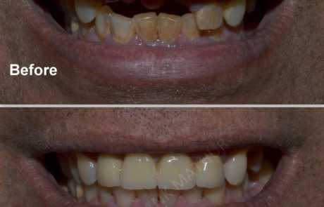 Teeth Replacement using Czar Zirconia Bridge