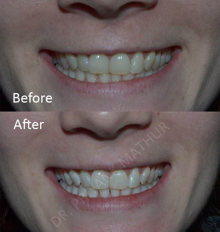 Teeth Whitening In Pune How Are Teeth Whitened Dental Bleaching