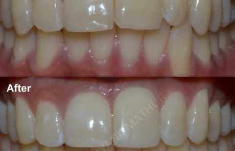 Teeth recontouring