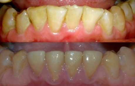 Treatment for a Reverse Smile